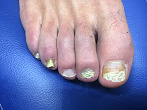 dr-foot-Nail-Care