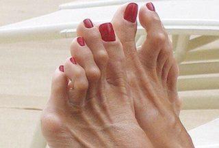 dr-foot-arthritis-Problem