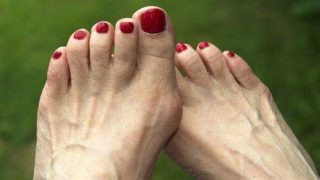 dr-foot_bunion_Treatment