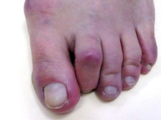 dr-foot_hammer_toe_Problem