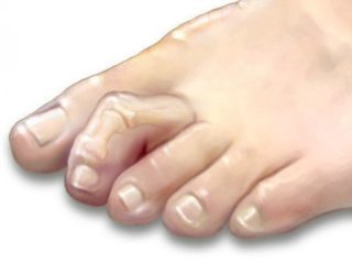 dr-foot_hammer_toes_Treatment