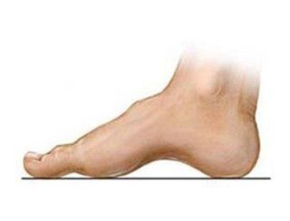 dr-foot_high_arch_Problem